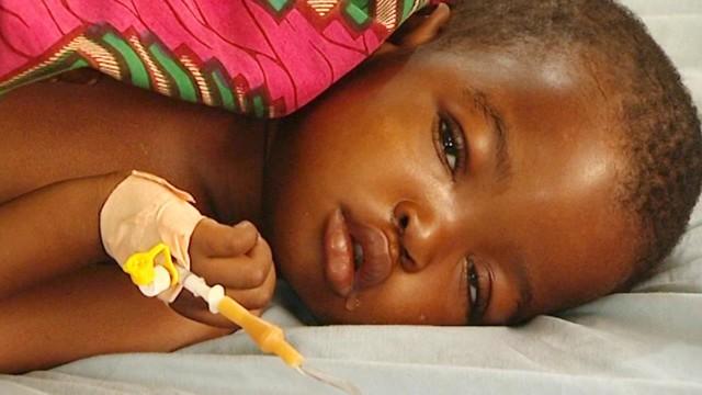 Impacts of Malaria